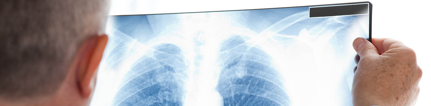 Medical Mesothelioma Cases